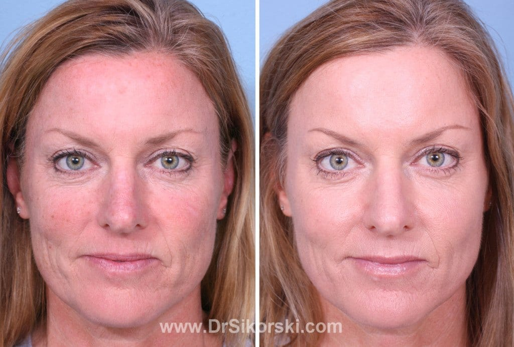 Benefits of Fraxel Thulium Laser Before and After Image 1