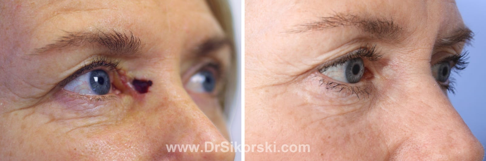 Mohs Surgery Mission Viejo | Orange County | Natural Image OC