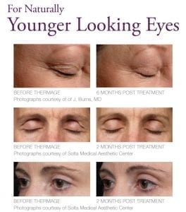 Naturally Younger Looking Eyes Image