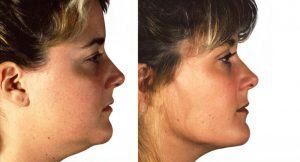 before-after-header-cheek-chin-implants-1024x776