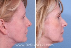 Ultherapy Mission Viejo Before and After Patient C 3