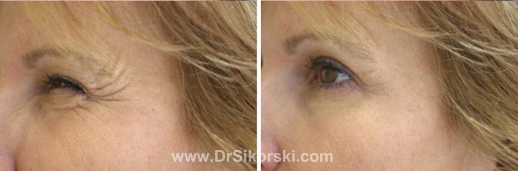 BOTOX Mission Viejo Patient 1