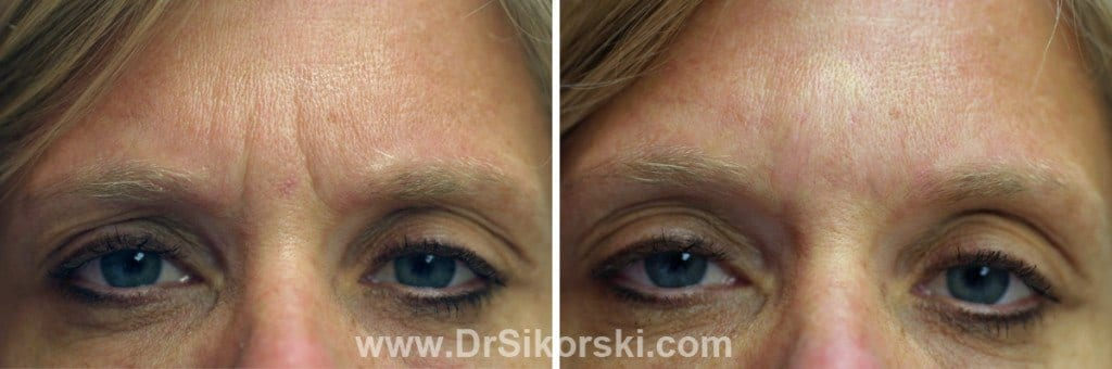 BOTOX Mission Viejo Patient 2
