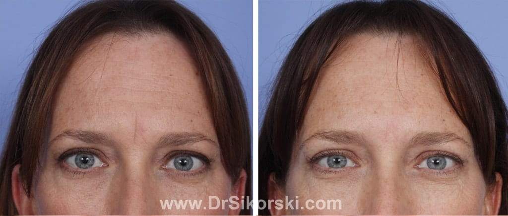 BOTOX Mission Viejo Patient 4