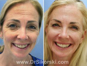 BOTOX Orange County Patient 1