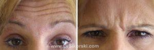 BOTOX Orange County Patient 5