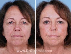 Blepharoplasty Mission Viejo Patient 1
