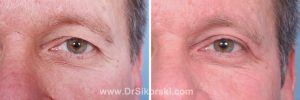 Blepharoplasty Mission Viejo Patient 3