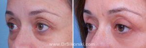 Blepharoplasty Mission Viejo Patient 4