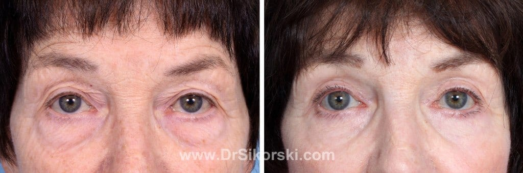 Blepharoplasty Mission Viejo Patient 5
