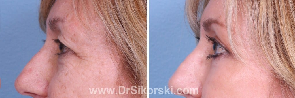 Blepharoplasty Before and After Orange County Patient A