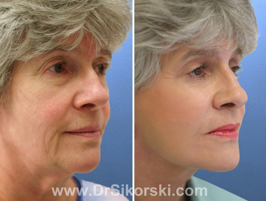 Blepharoplasty Orange County Patient 2