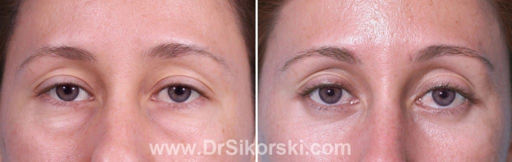 Blepharoplasty Orange County Patient 3