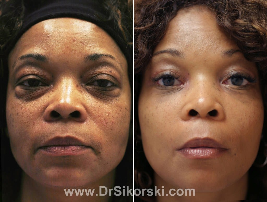 Blepharoplasty Orange County Patient 4