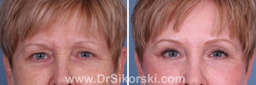 Blepharoplasty Orange County Patient 5
