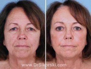 Blepharoplasty1-300x227