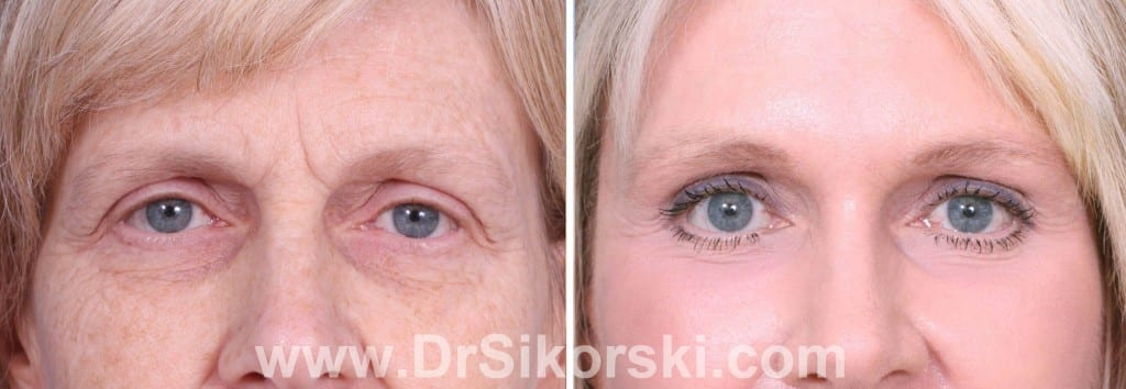 Brow Lift Mission Viejo Patient 2