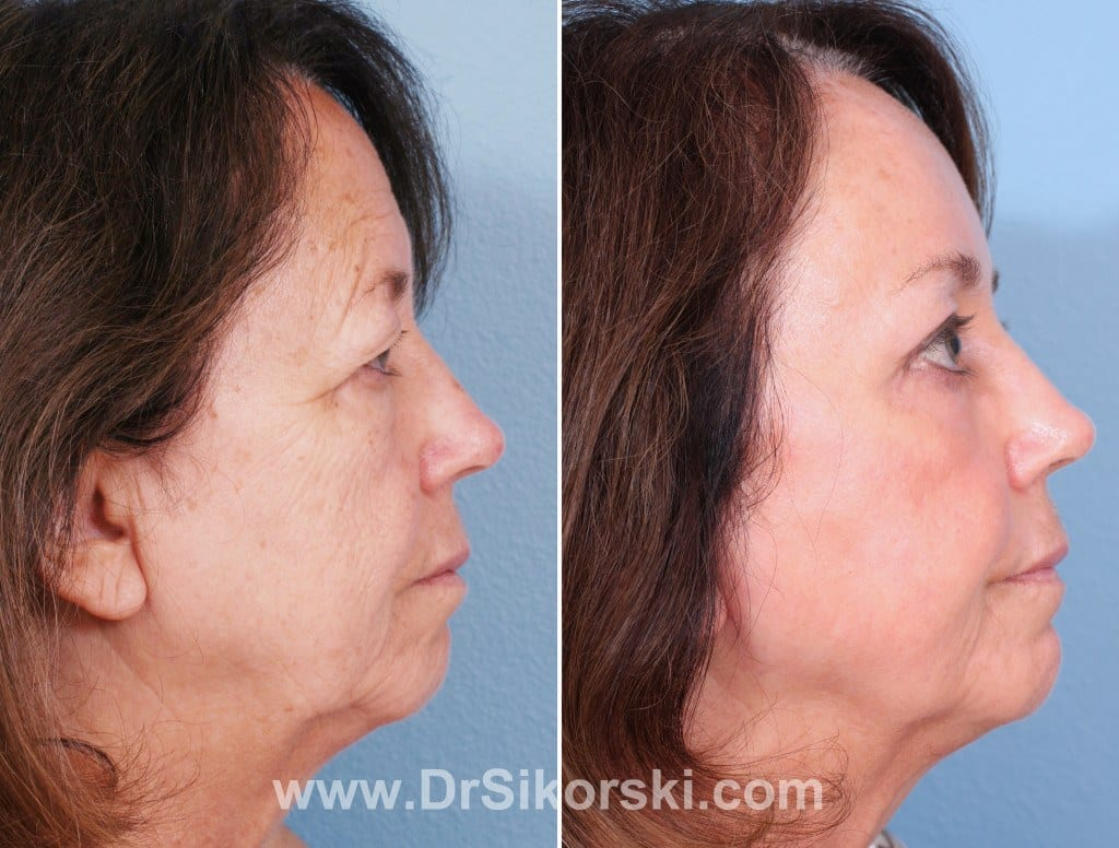 Brow Lift Mission Viejo Patient 3