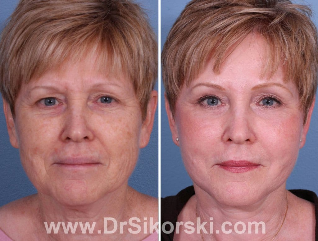 Brow Lift Mission Viejo Patient 4