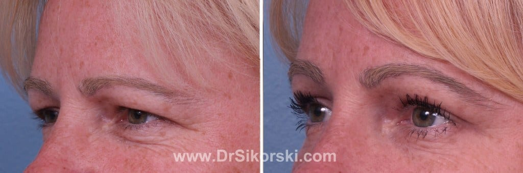 Brow Lift Orange County Patient 1
