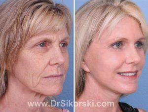 Brow Lift Orange County Patient 2