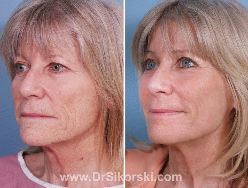 Brow Lift Orange County Patient 3