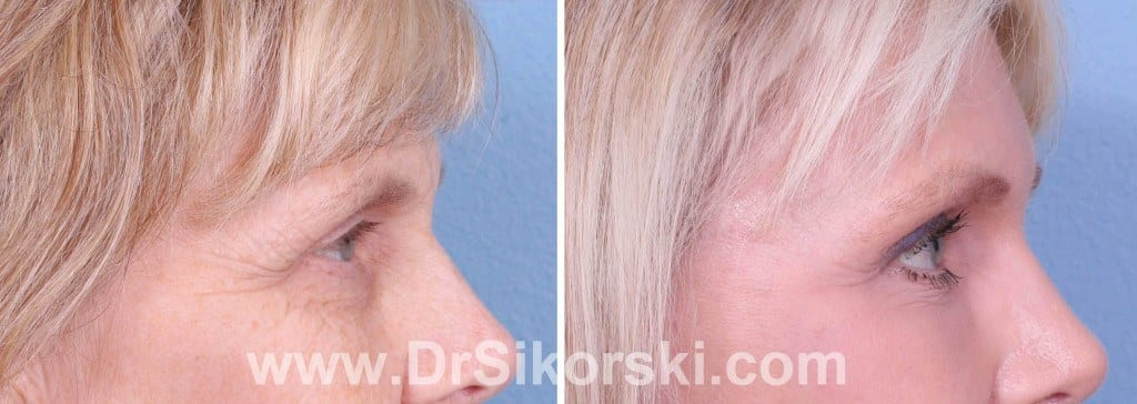 Brow Lift Orange County Patient 4
