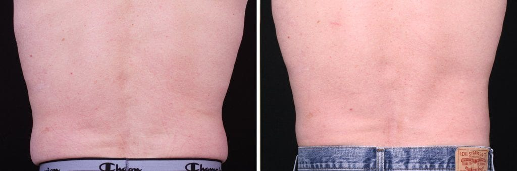 CoolSculpting Mission Viejo Before and After Patient G