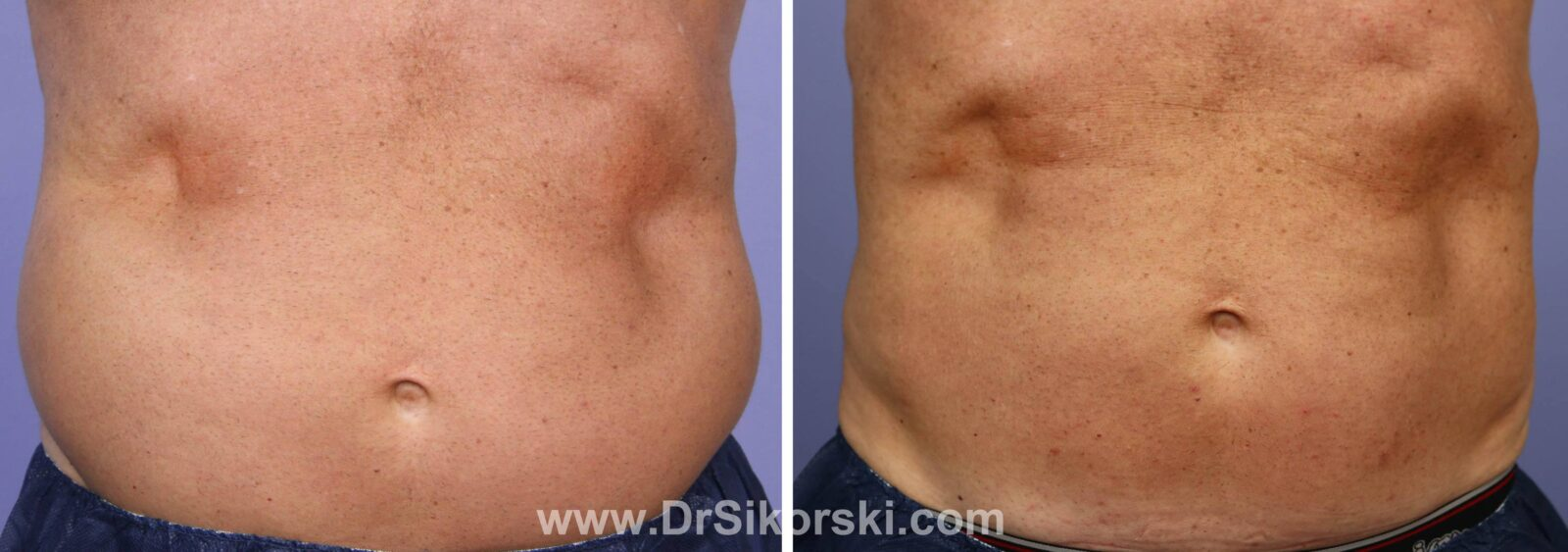 CoolSculpting Mission Viejo Before and After Patient H1
