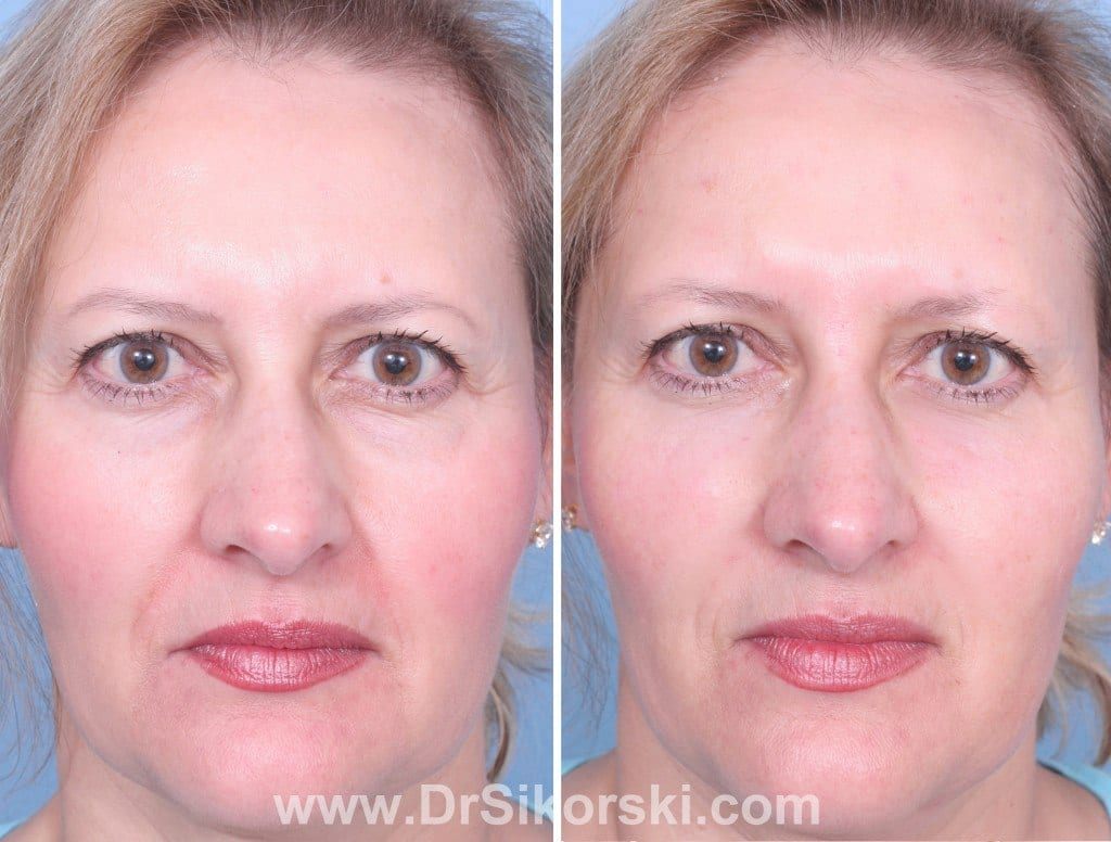 Dysport® Orange County Before and After Patient B