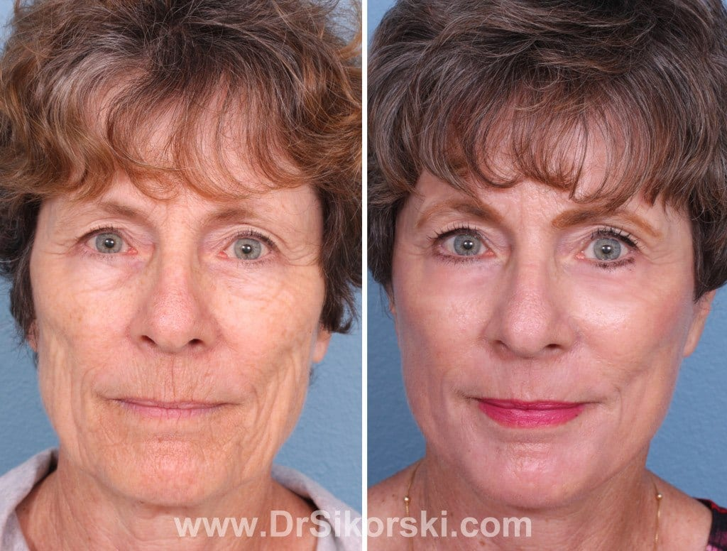 Erbium Laser Mission Viejo Before and After Patient E