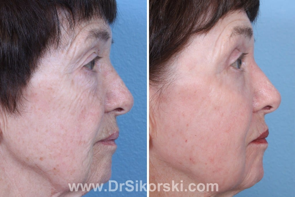 Erbium Laser Mission Viejo Before and After Patient H