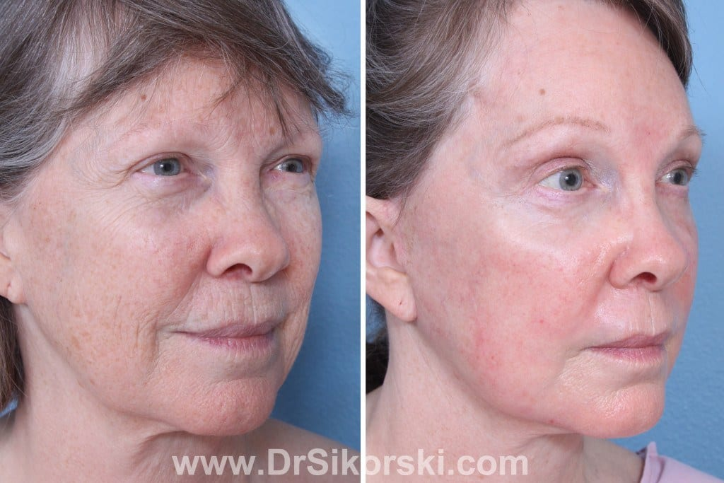 Erbium Laser Mission Viejo Before and After Patient I