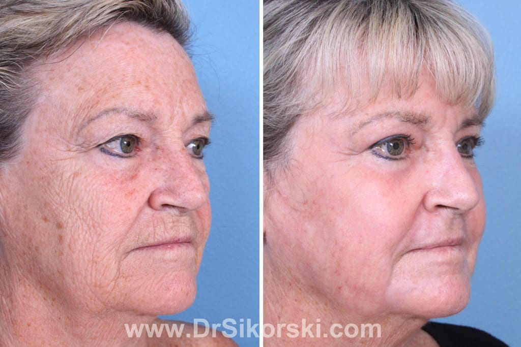 Erbium Laser Orange County Before and After Patient C