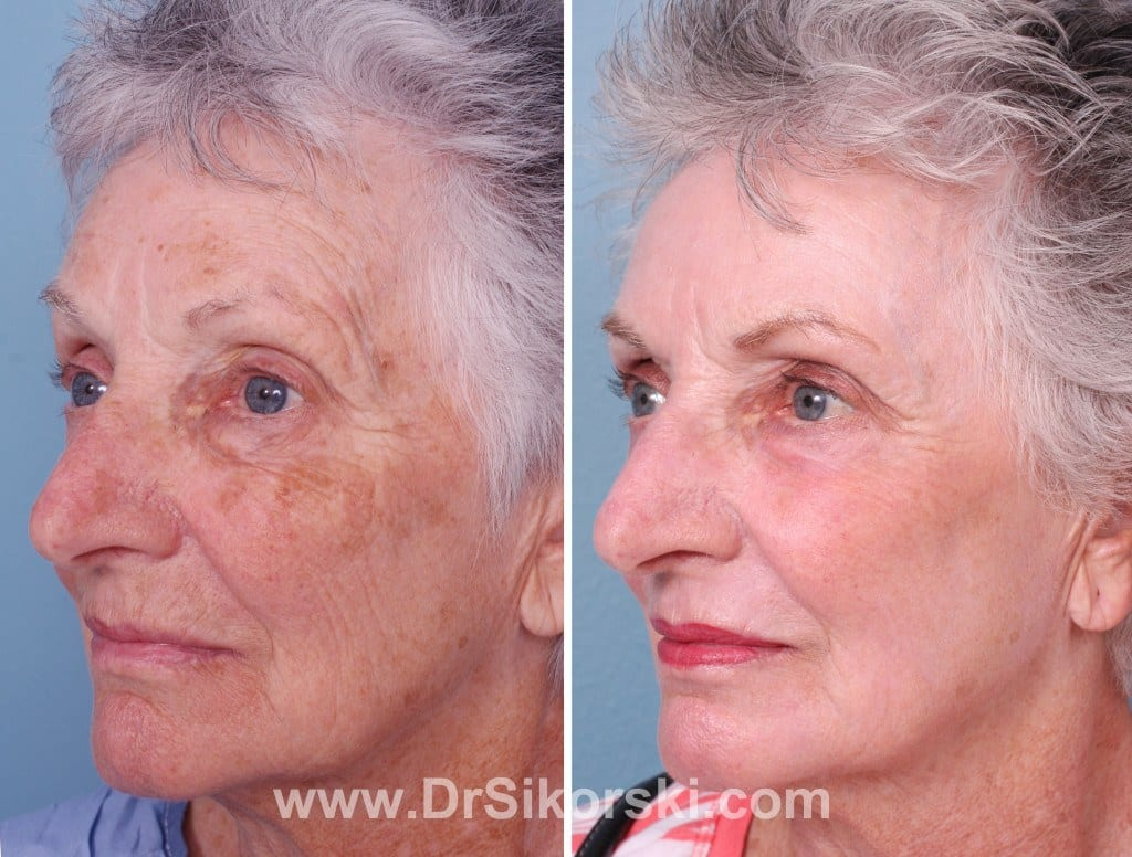 Orange County Erbium Laser Before And After Photos