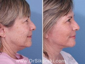 Facelift Mission Viejo Patient 2