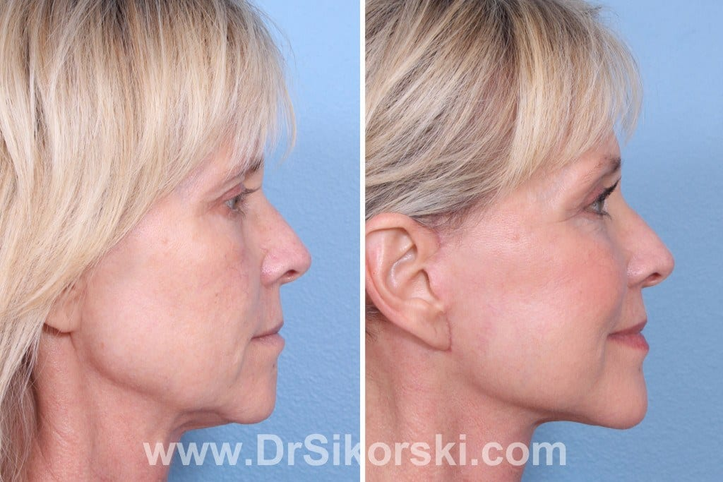 Facelift Mission Viejo Before and After Patient F