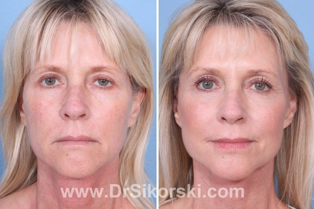 Facelift Orange County Before and After Patient A