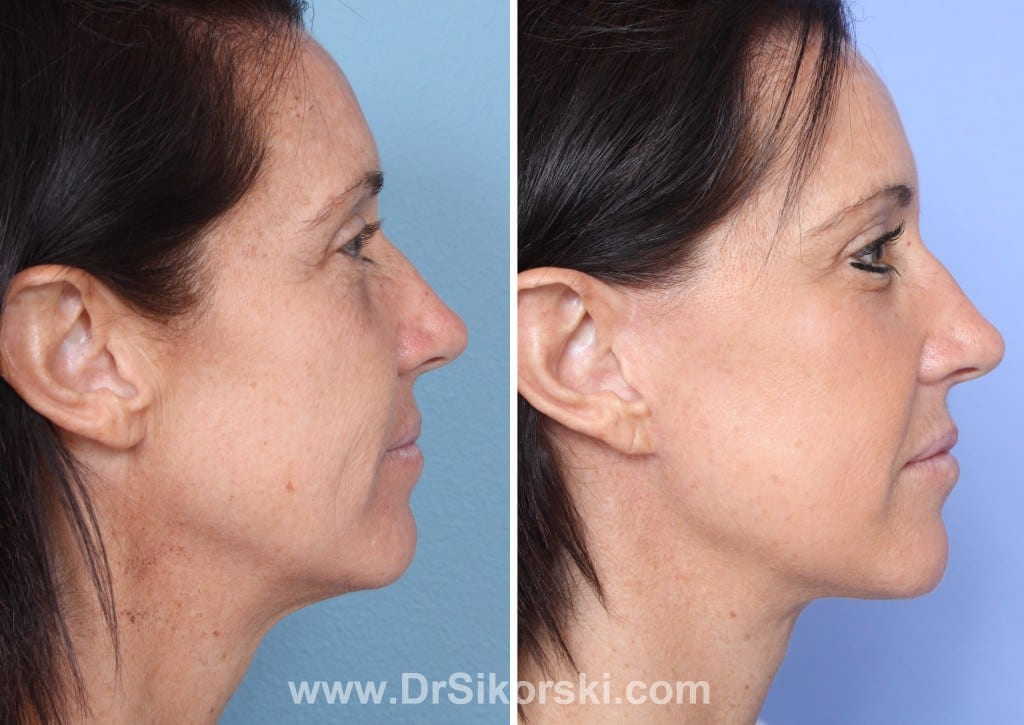 Facelift Orange County Before and After Patient B