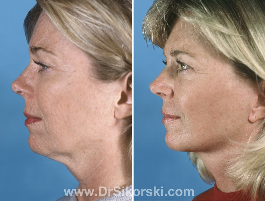 Facelift Orange County Before and After Patient C