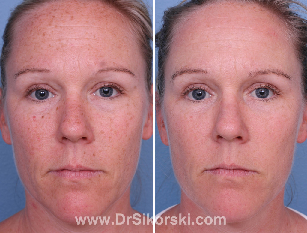 Orange County Intense Pulse Light Ipl Before And After