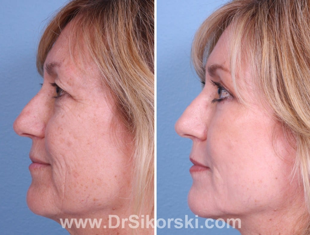 Jowl Lift Orange County Before and After Patient C