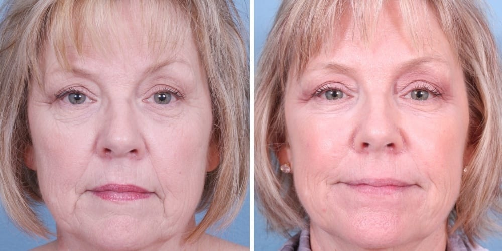 Juvederm Mission Viejo Before and After Patient B