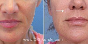 Juvederm Orange County Patient 1