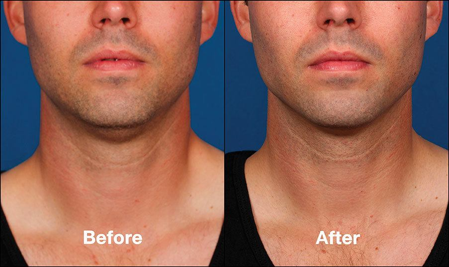 Kybella Mission Viejo Before and After Patient E