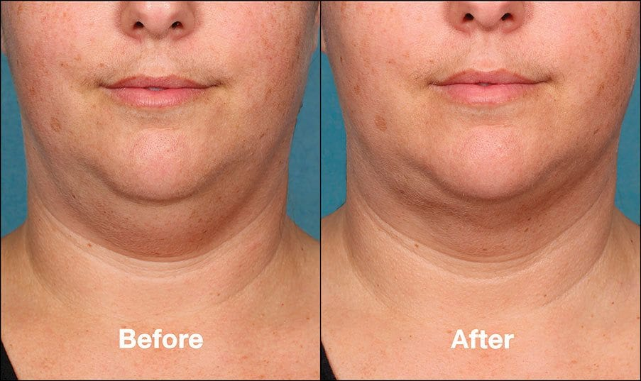 Kybella Mission Viejo Before and After Patient G Side View