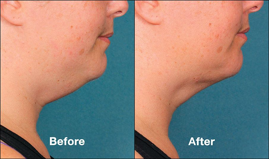 Kybella Orange County Before and After Patient G