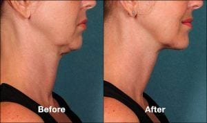 Kybella Orange County Patient 1