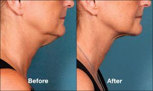 Kybella Orange County Patient 2