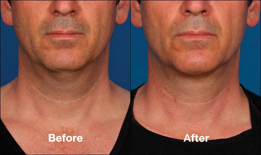 Kybella Orange County Patient 3